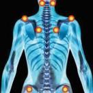 Les symptômes de la fibromyalgie : Illustration