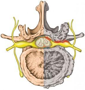 Coupe transversale colonne vertébrale Disque vertébral