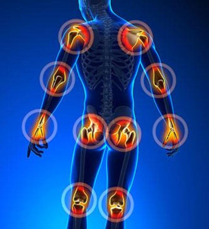 Arthrite et Polyarthrite rhumathoïde - infos