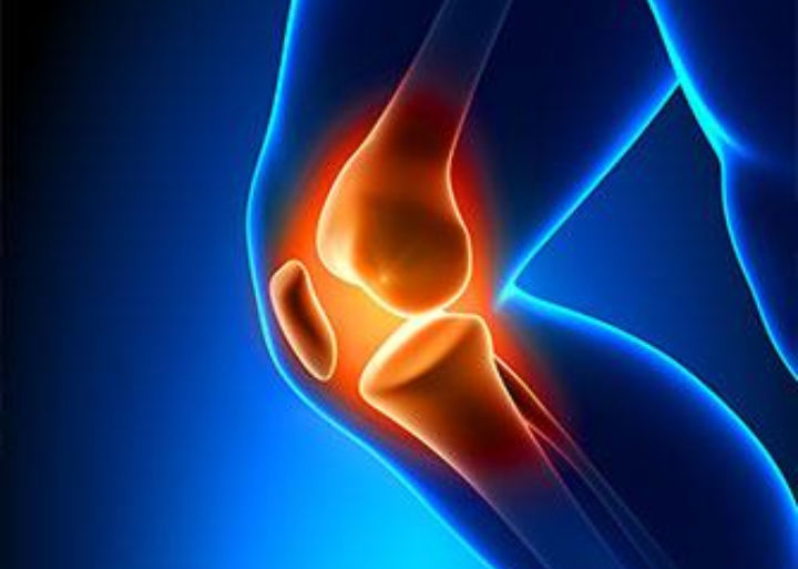 Arthrite et Polyarthrite rhumathoïde - tout savoir