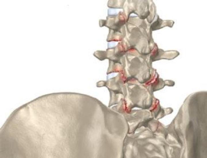 L'arthrose - infos