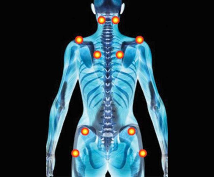 La fibromyalgie - infos