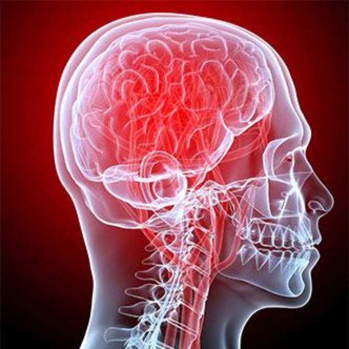 Migraine - Mal de tête - infos