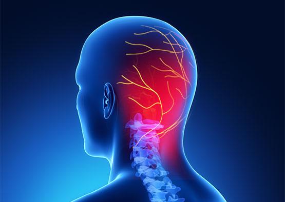 Névralgie D Arnold Définitions Causes Symptomes Lesmauxdedos