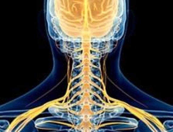 Névralgie cervico brachiale - Tout savoir